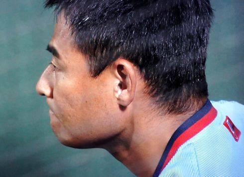 前田智 死球に乱闘寸前、左手首の骨折で長期離脱か