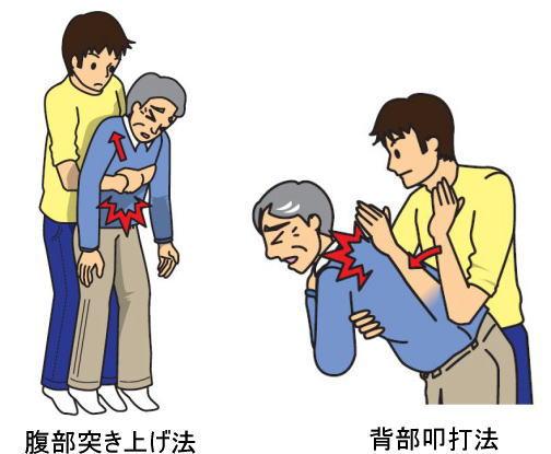 餅がのどに詰まった時の応急処置、腹部突き上げ法と背部即打法
